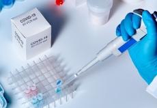 На Тернопільщині за попередню добу зафіксовано 32 нових випадки COVID-19