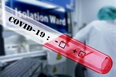За останню добу в чотирьох тернополян підтвердили діагноз COVID-19
