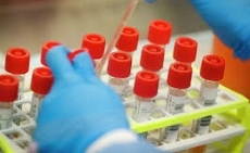 За добу у Тернополі зафіксовано вісім нових випадків COVID-19