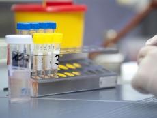 40 тернополян захворіли на COVID-19 за попередню добу